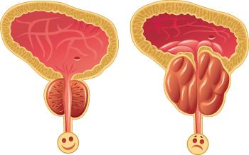prostatita cronică afectează erecția din care crește erecția
